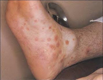 what virus causes herpes pictures early